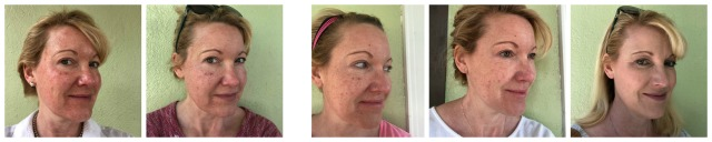 All about my IPL treatment (intense pulsed light) treatment; before, during, and after | 11 Magnolia Lane
